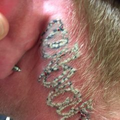 frosting tattoo removal