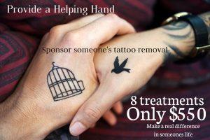 Sponsor tattoo removal