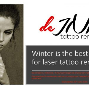 discount for laser tattoo removal