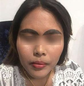 brow tattoo removal