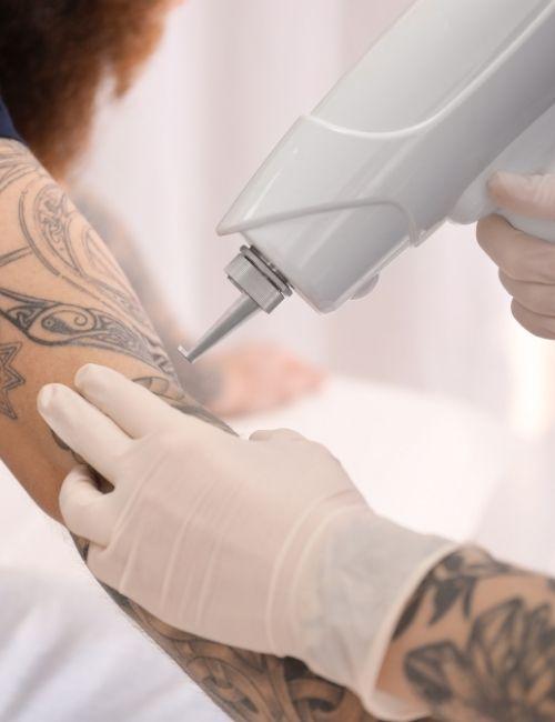 Removing Tattoo