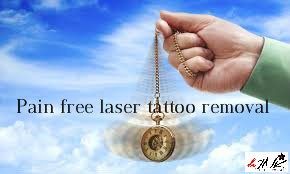 Pain Free Laser Tattoo Removal