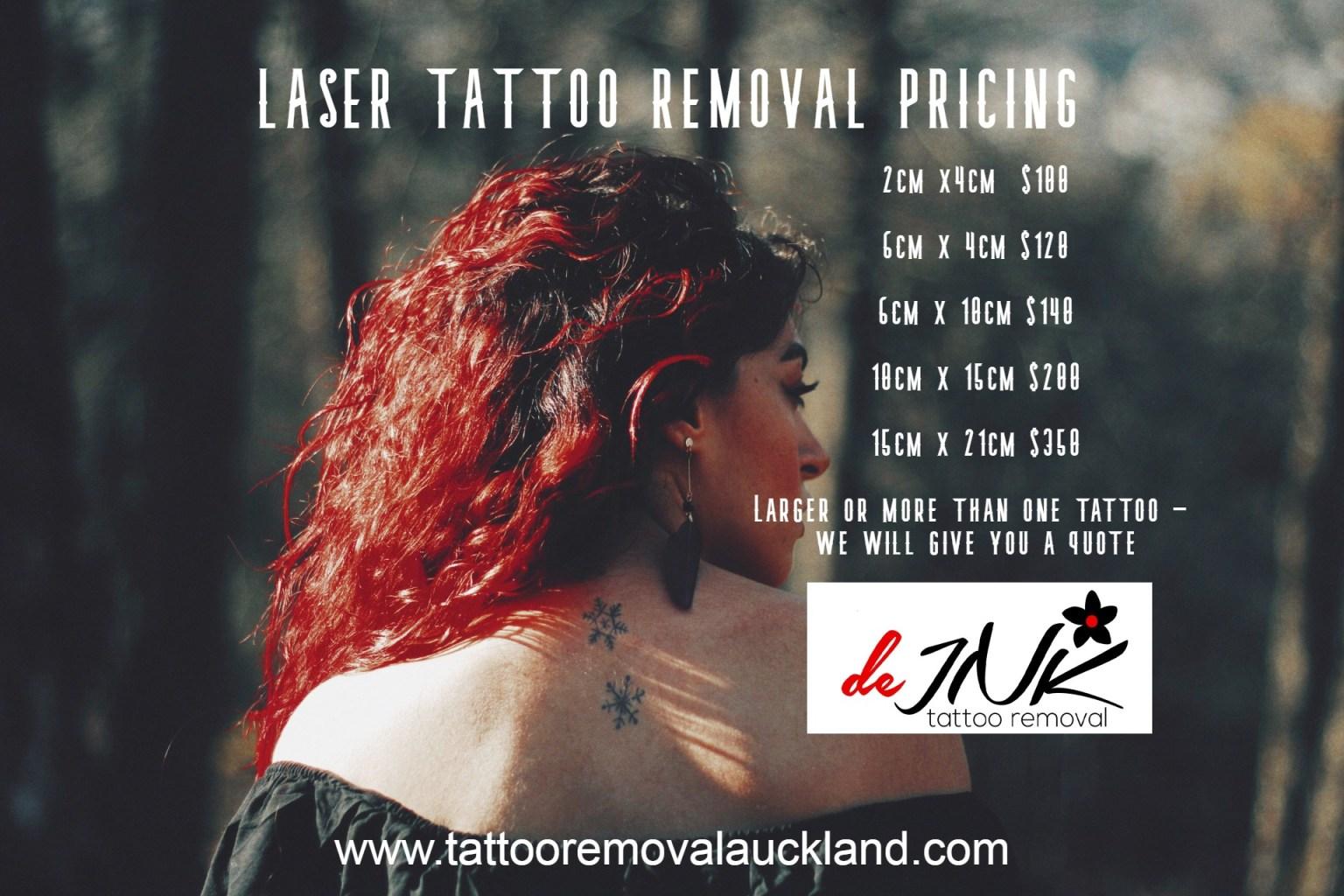 laser-prices