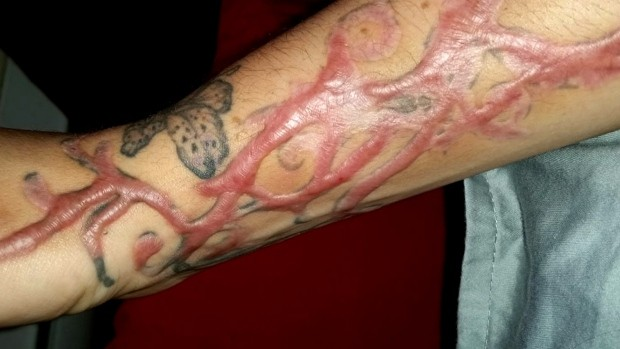 tattoo-removal-scars
